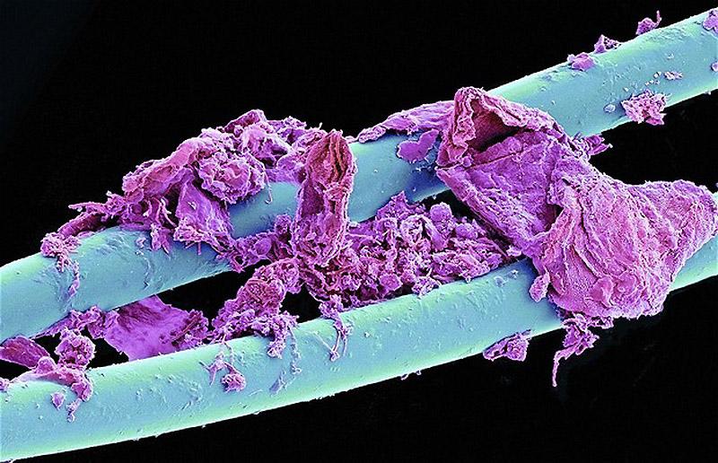 Использованная зубная нить - Обычные вещи крупным планом