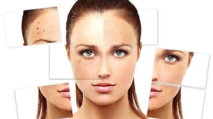Как бороться с жирной проблемной кожей лица?