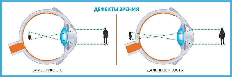 Дефекты зрения - близорукость - дальнозоркость - Лазерная коррекция зрения при близорукости и дальнозоркости