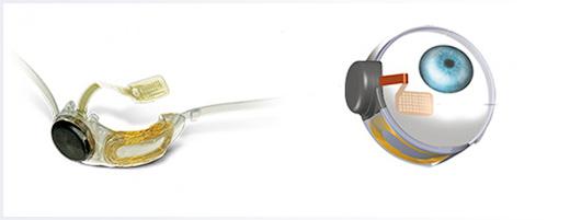Электронная сетчатка-имплантат впервые вышла на рынок - Форум Сириус - Торез