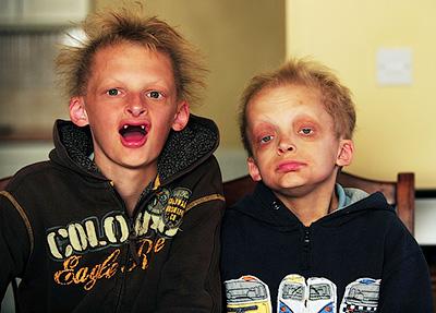 Братья Симон и Джордж Кален страдают редким генетическим заболеванием - Встающие из гроба. Вампиры - миф и реальность - Форум Сириус - Торез