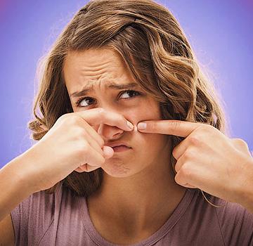 Причины и лечение угревых высыпаний на коже лица - Форум Сириус - Торез